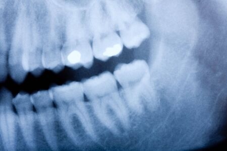 un d�tail de radiographie dentaire Banque d'images