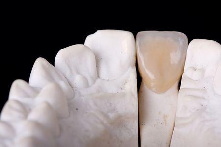 prothese: Detail dental Wachs Modell Ower schwarzen Hintergrund