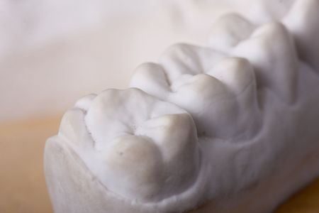 detail dental wax model  photo
