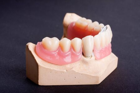 detail dental wax model ower black background photo