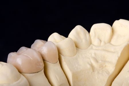 molars: detail dental wax model over black background  Stock Photo