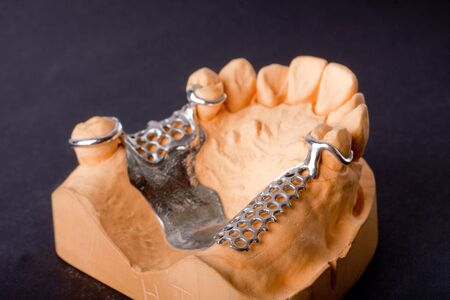 molars: detail dental wax model ower black background