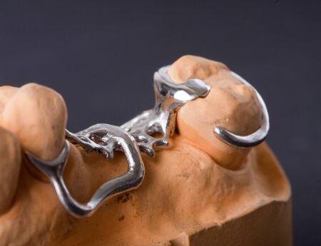 prosthetic: detail dental wax model ower black background