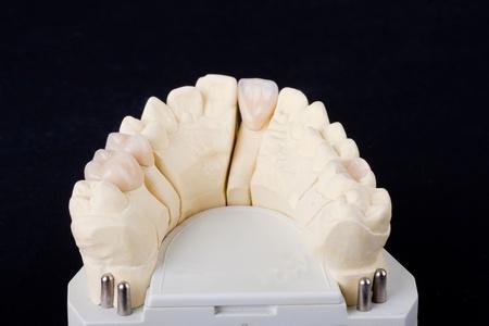 molares: Fondo de banquillos negro de modelo de ceras para odontolog�a de detalle