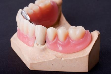 denture: detail dental wax model ower black background