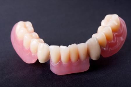 detail dental wax model ower black background photo