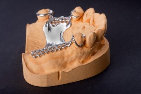 molars: Fondo de banquillos negro de modelo de ceras para odontolog�a