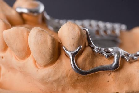 prothèse dentaire: arrière-plan de puissance noir pour le modèle empreintes dentaires Banque d'images