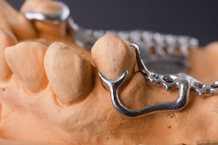 dental wax model ower black background