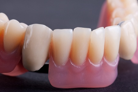 detail dental wax model ower black background