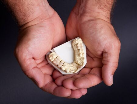 detail dental wax model in human palm photo