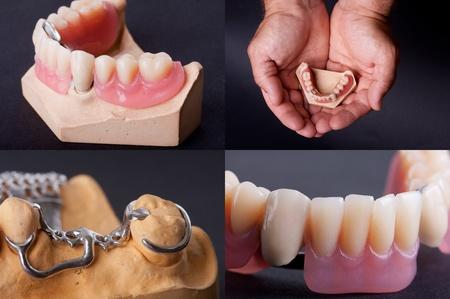 molares: el tema dental Foto de archivo
