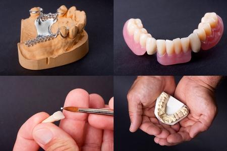 molares: modelos dentales de cera para personas de dentista Foto de archivo