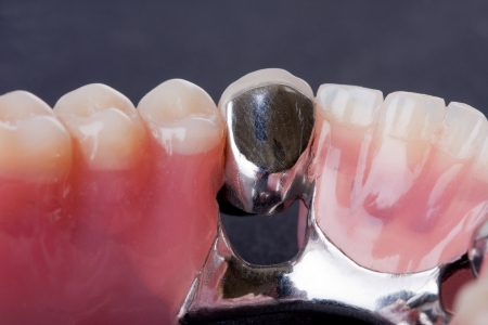 molars: detail dental wax model in human palm