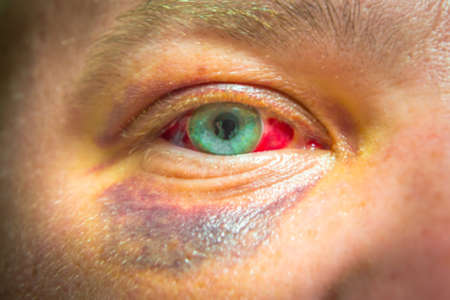 Photo of eye injury. Place for your text. Photo of eye injury. Place for your text.