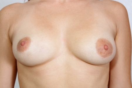 A close-up of asymetric female breasts, unretouched.