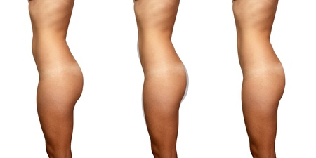 Three left profile views of a female torso illustrating presurgical, areas of potential fat removal, and post surgical