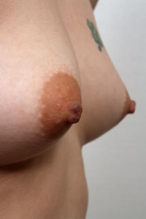 A closeup of a female breast, 36-inch, B-cup  photo