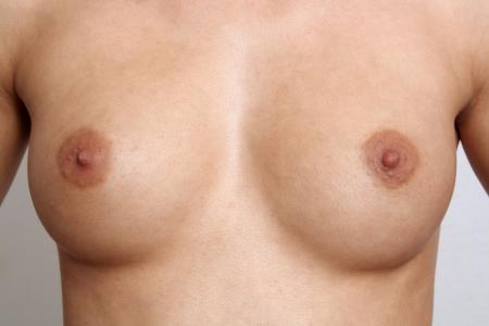 pechos: Simétricos pechos femeninos, tamaño 30-C, sin retocar Foto de archivo