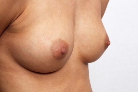 Symmetrical female breasts, size 30-C, unretouched