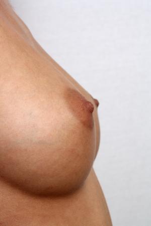 senos desnudos: Sim�tricos pechos femeninos, tama�o 30-C, sin retocar Foto de archivo