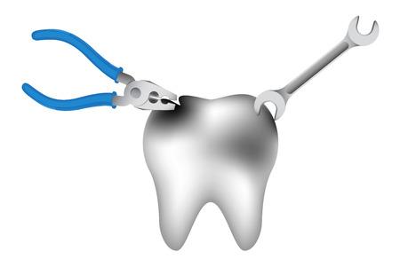 diente caries: ilustraci�n de la reparaci�n de una caries dental en el fondo blanco