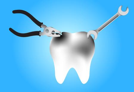 diente caries: ilustraci�n de la reparaci�n de una caries dental sobre fondo azul