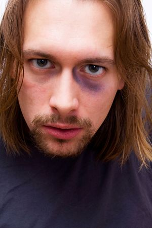 Young man with black eye on white background Stock Photo