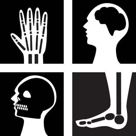 hands and feet:  XRay Set