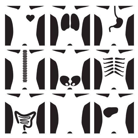 脊椎: X 線セット