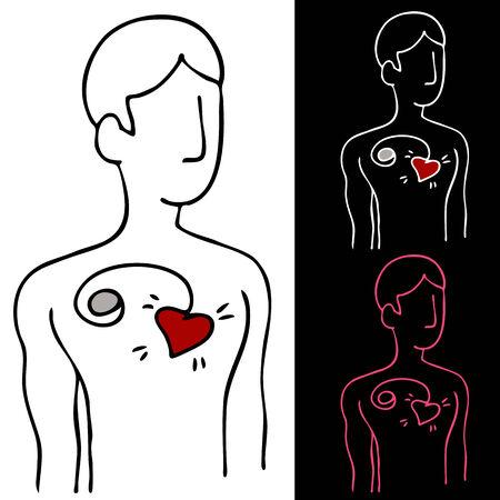 메이커: An image of a man with a pacemaker device attached to his heart.