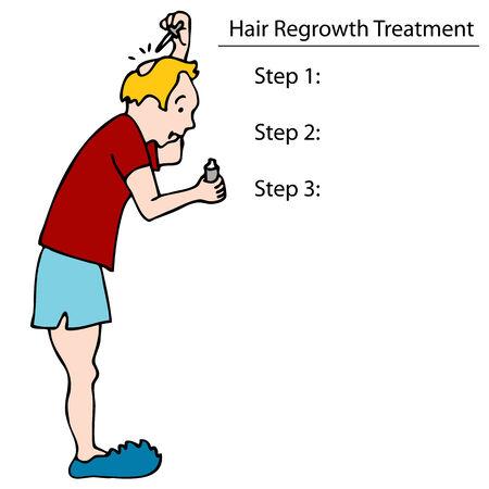 An image of a man applying hair tonic to his balding head. 向量圖像