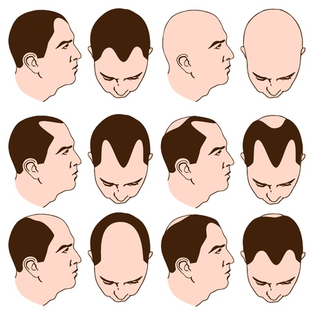 baldness: An image of man with various receding hairlines. Illustration