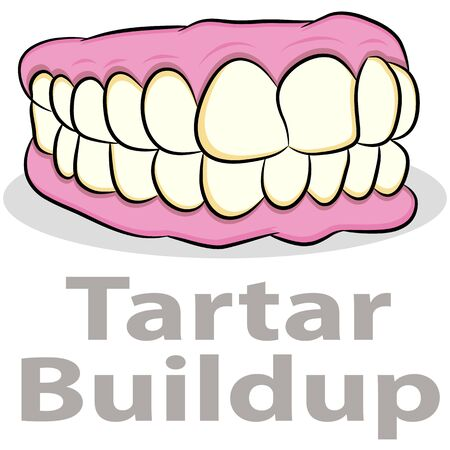 tartar: An image of a tartar buildup on teeth.