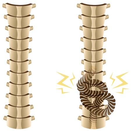 spine pain: Una imagen de una columna vertebral sana y una columna vertebral con nudos.