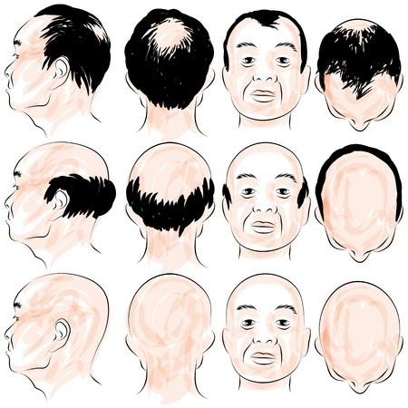 kel: An image of a asian male pattern baldness set. Çizim