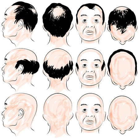 baldness: An image of a asian male pattern baldness set. Illustration