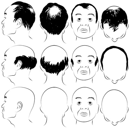 japanese style: An image of a asian male pattern baldness set. Illustration