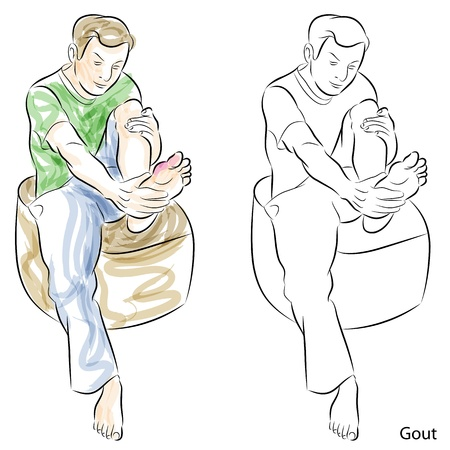 An image of a man massaging gout feet. Vector