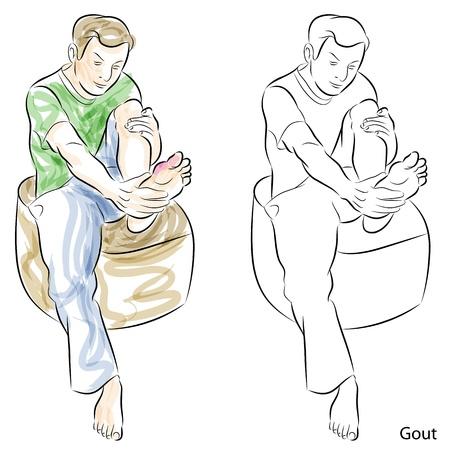 dolore ai piedi: L'immagine di un uomo, massaggio piedi gotta. Vettoriali