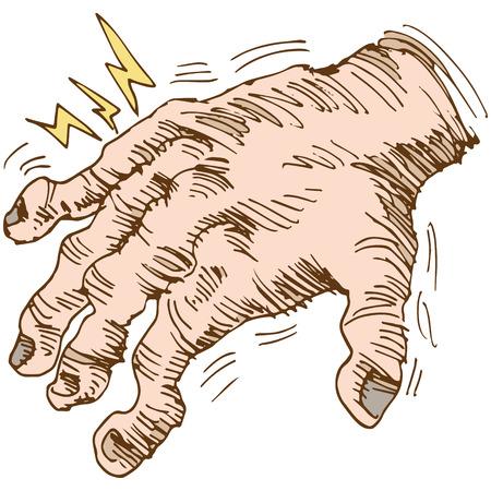 musculoskeletal: An image of a disfigured arthritis hand.