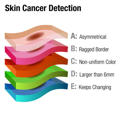 detection: An image of a skin cancer detection chart.