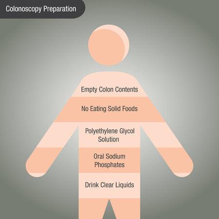 a colonoscopy chart. Illustration