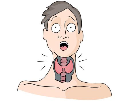 甲状腺疾患を持つ男のイメージ。