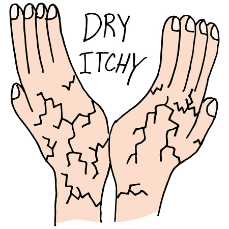 itchy: An image of Hands that are dry and itchy.
