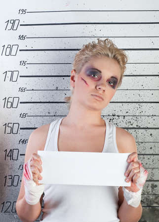 white girl in prison with injuries on ruler background Stock Photo - 9124728