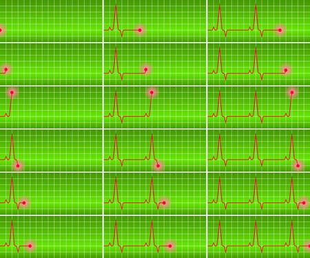 heart ekg trace: vector image - cardiograms set on a green background