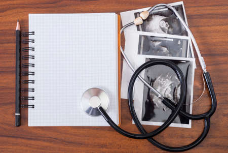 notebook, pencil, the results of ultrasound and stethoscope on the table