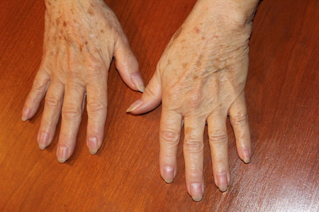 Hands of a female Senior citizen with age spots