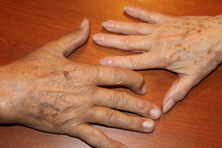 Hands of a couple Married for 55 years Stock Photo